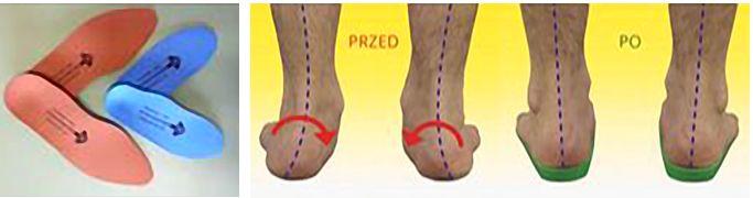 711f9fccd3f3b Wkładkę można przekładać do innych butów. Na wizytach kontrolnych wkładka  jest korygowana tak aby zmieniała się wraz ze zmianą kondycji stopy.