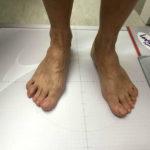 Badanie podologiczne stóp pacjenta Zielona Góra