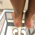 Badanie wad stóp przy użyciu podoskopu, Dermasana