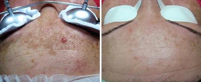 Laserowa redukcja przebarwień skóry