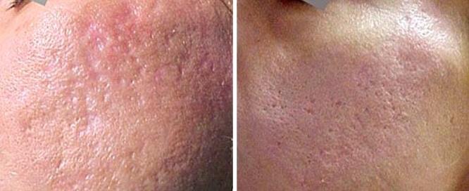 Laserowa redukcja blizn trądzikowych