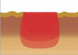 laserowa redukcja zwiotczeń skóry, smooth, fotona