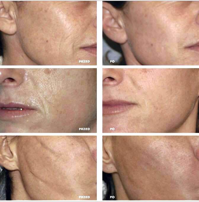 atelokolagen do regeneracji i odbudowy skóry twarzy
