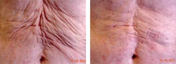 nieablacyjne zagęszczanie skóry, fotony frac3, frakcjonowanie 3d