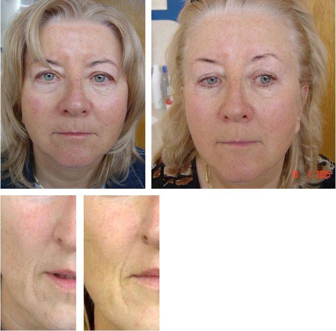 nieablacyjne fotoodmładzanie skóry, odmładzanie twarzy
