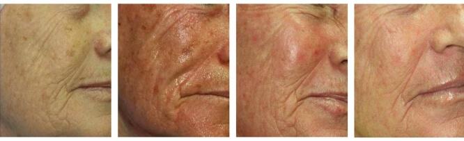 Laserowy Resurfacing skóry twarzy