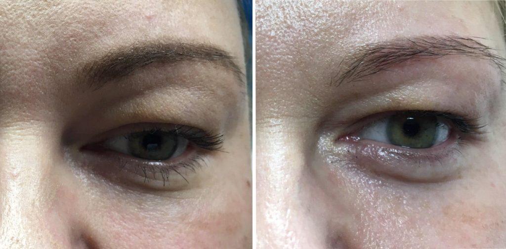 karboksyterapia oczy